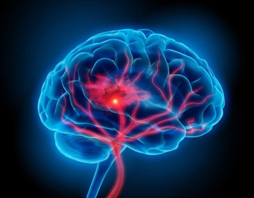 que es fisioterapia neurologica
